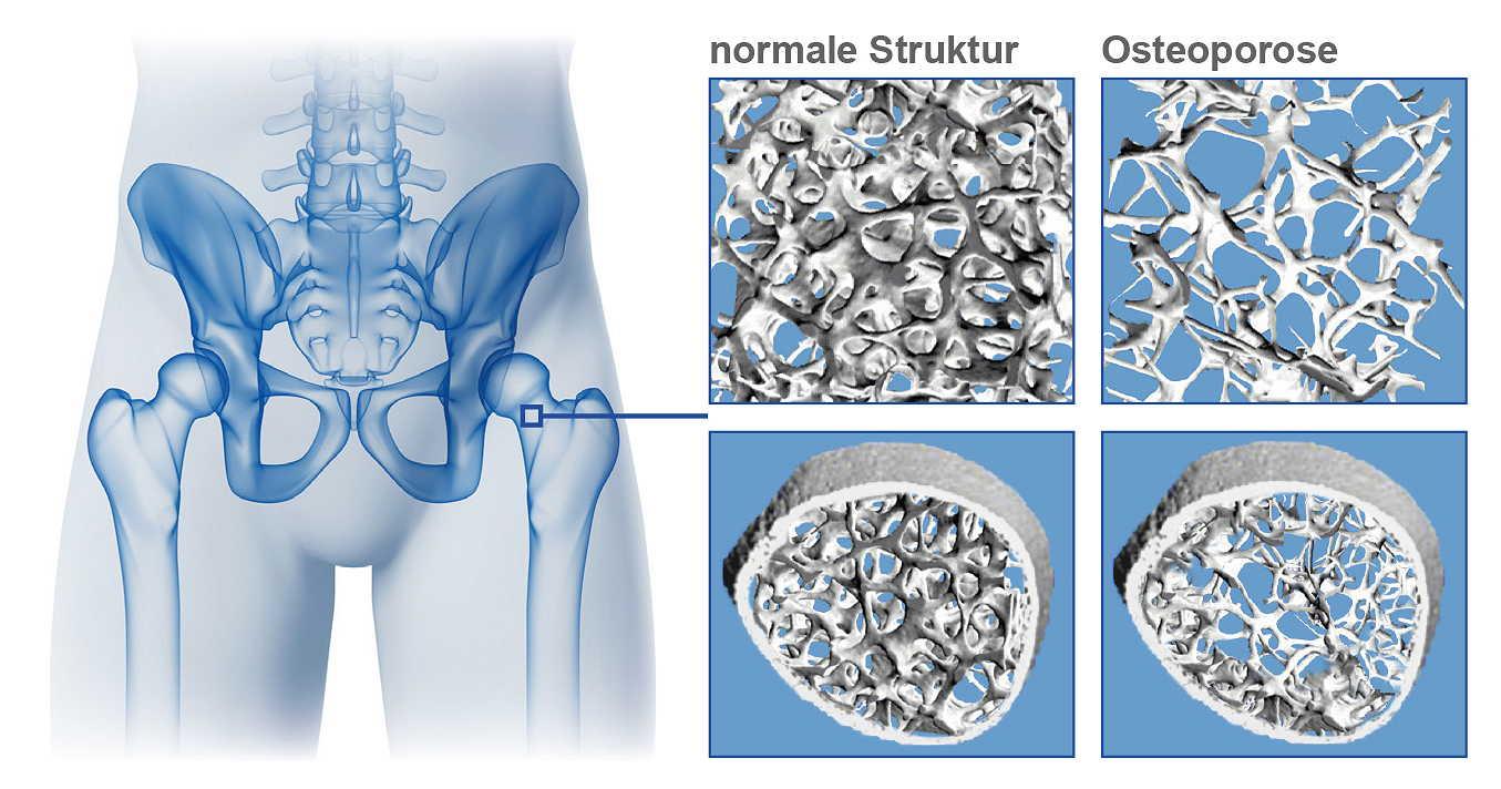 ernährungs docs osteoporose