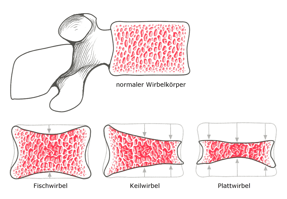 Osteoporose - Wirbeleinbruch